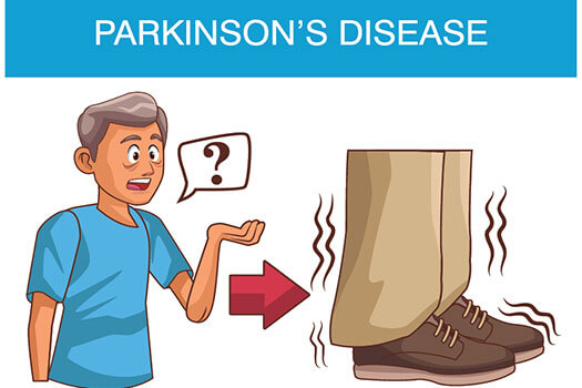 5 Early Parkinson's Symptoms to Watch For in Huntsville, AL